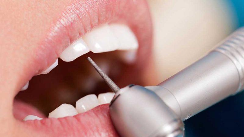 Värdet av våra tänder